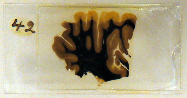 Slice of Einstein's Brain on a Slide - Reuters