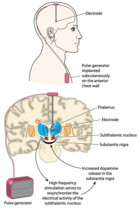 Deep brain stimulation device implant - shutterstock
