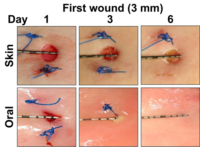 Wound figure - Sci. Transl. Med.