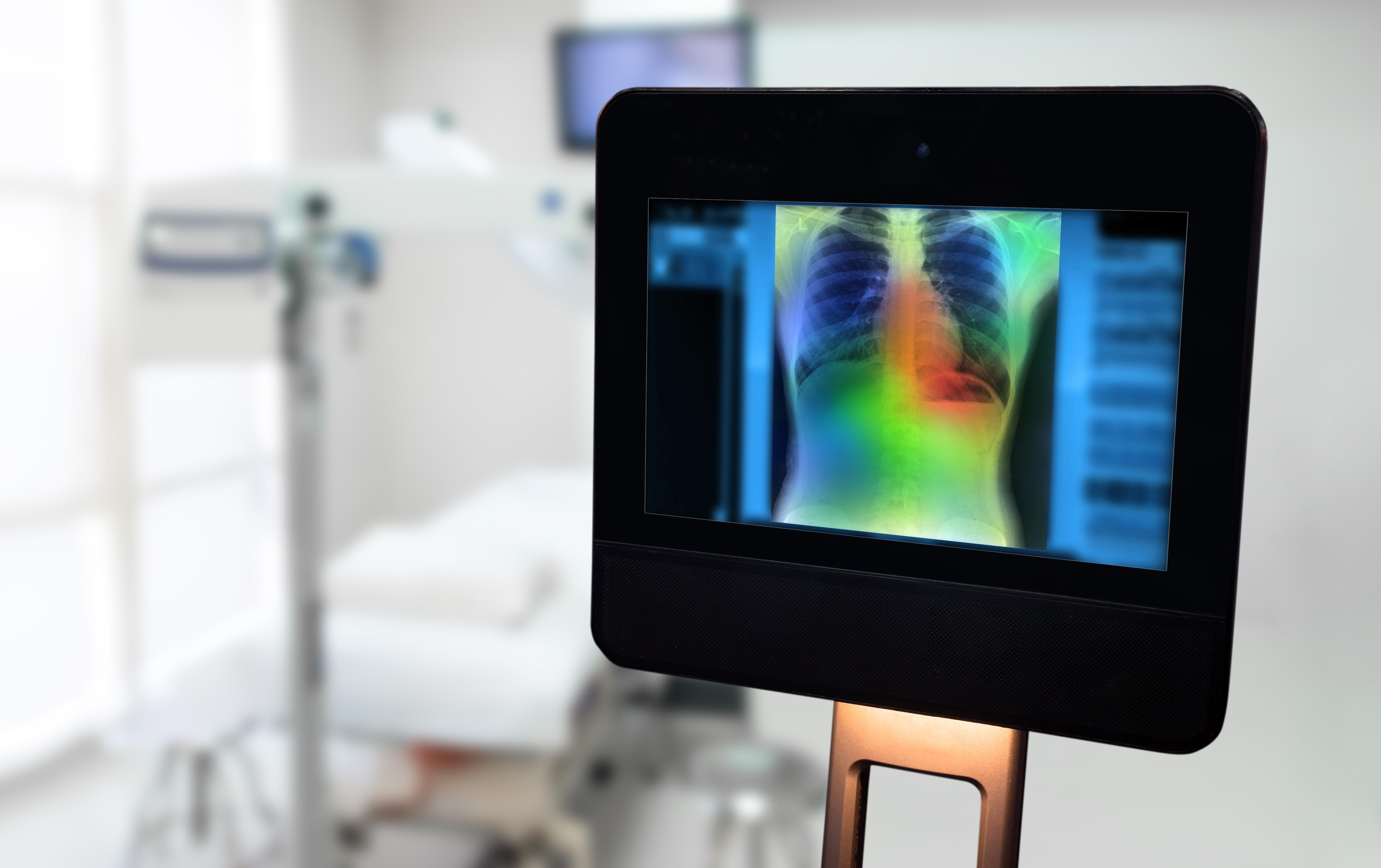 Is AI Ready to Help Diagnose COVID-19?