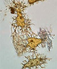 Dinosaur-bone-cells.jpg