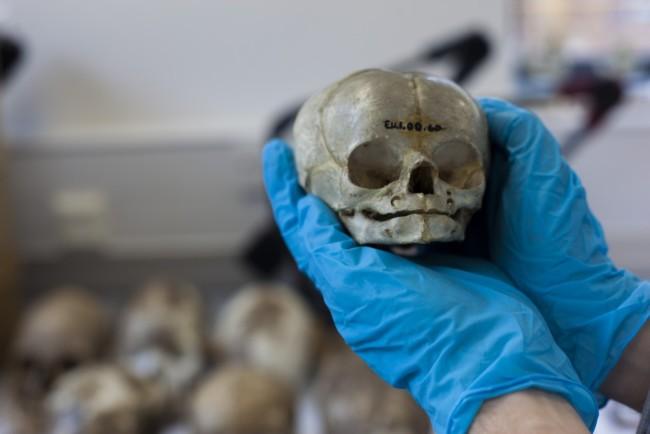 infant-skull-1024x683.jpg