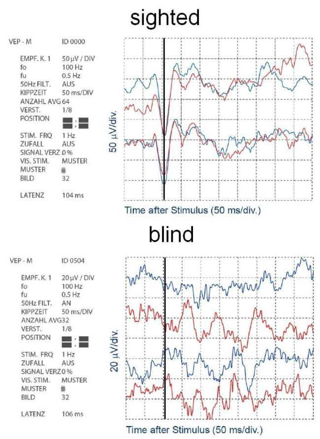 Sighted versus blind VEPs chart
