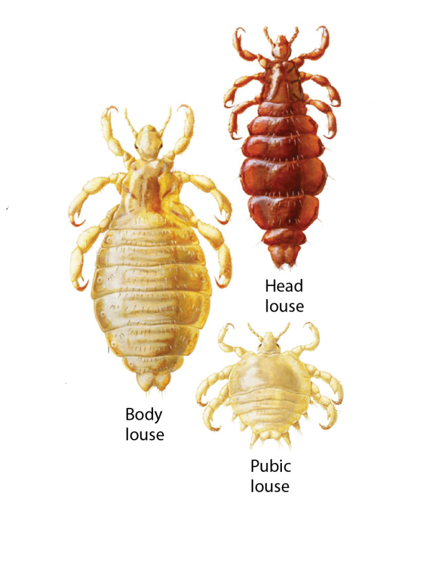 Lice - Science Source