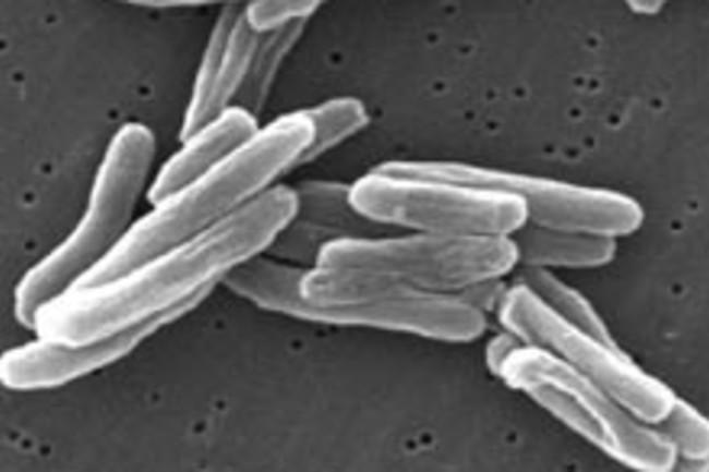 Mycobacterium_tuberculosis.jpg