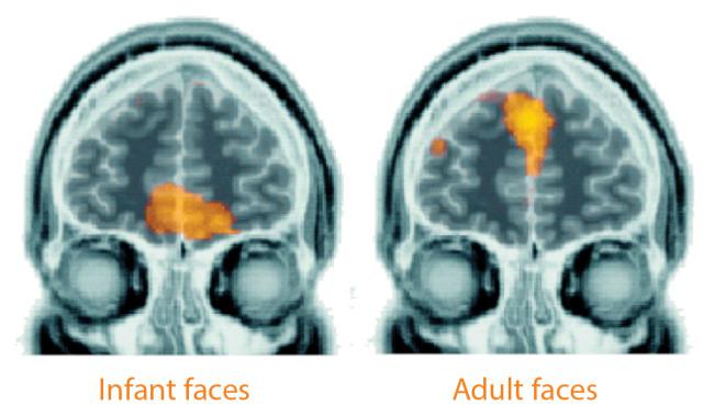 Faces Brain Activation - Kringelbach et al. 2008