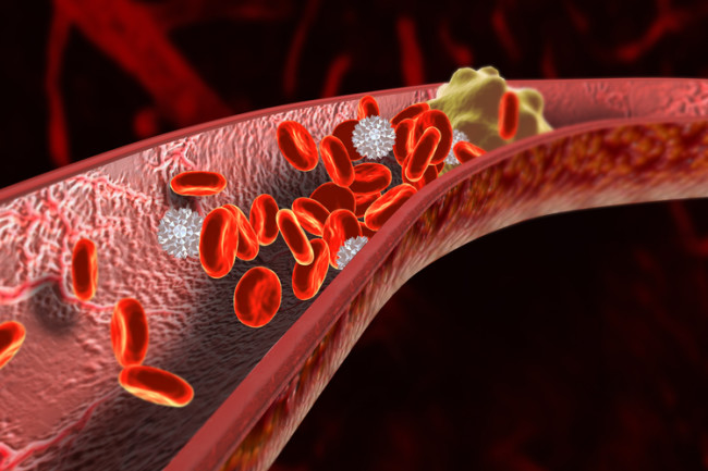Blood Clot - Shutterstock