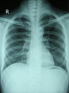 chest_xray_normal-221x300.jpg