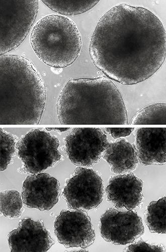 brain-organoids.jpg