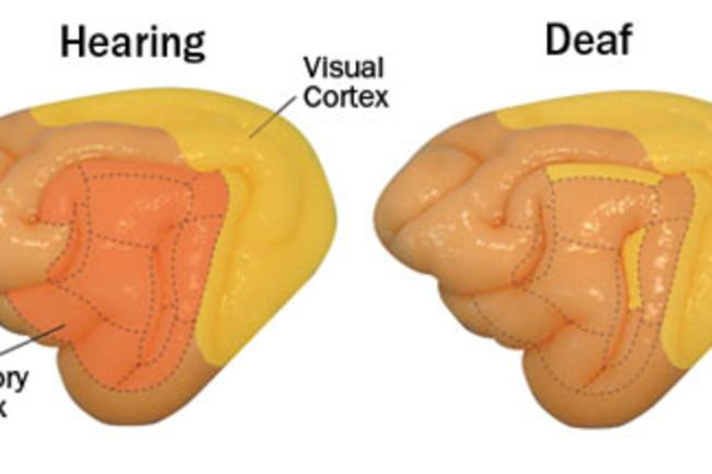 deaf-brain.jpg