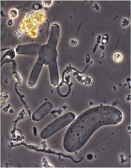 Nephromyces.jpg