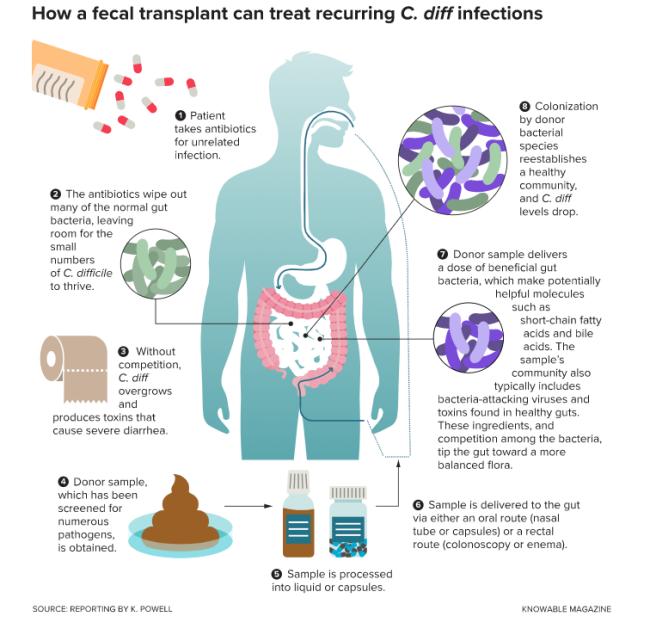 Fecal Transplant Diagram - Knowable