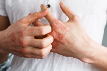 The Cure for Eczema is Likely More than Skin Deep