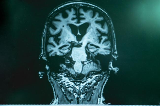 brain scan alzheimer's