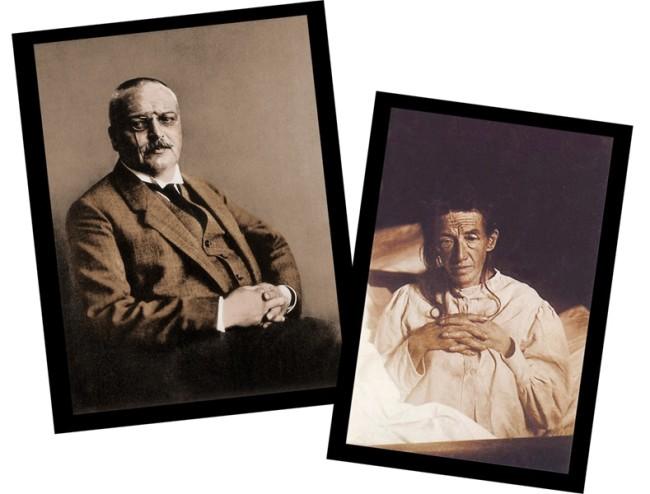 "Aloysius ""Alois"" Alzheimer and Auguste Deter"