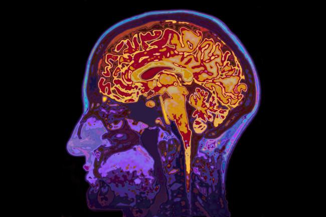 MRI brain scan - shutterstock