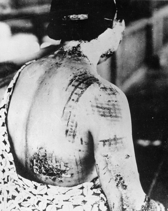The_patients_skin_is_burned_in_a_pattern_corresponding_to_the_dark_portions_of_a_kimono_-_NARA_-_519686-818x1024.jpg