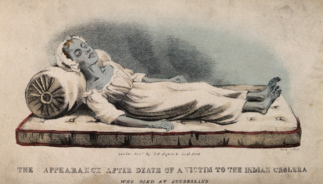 A colored lithograph by from 1832 of a deceased cholera victim. Note the blue complexion, sunken face, and emaciated extremities. Source: Wellcome Collection. Click for source.
