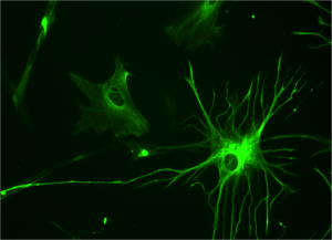astrocyte-e1330971294191.png