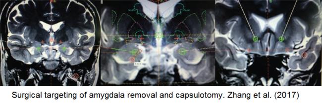 Amygdala Removal Figure - Zhang et al. 2017