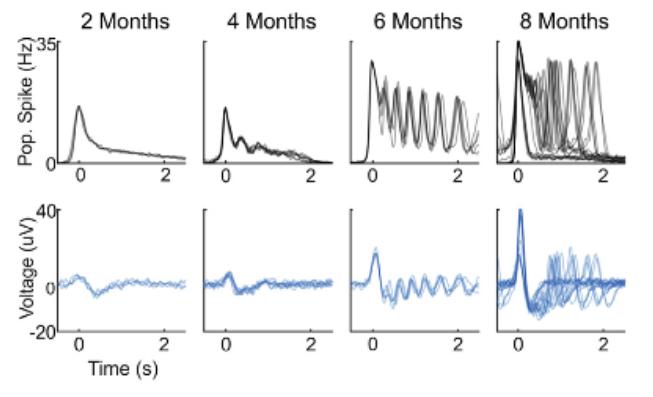 Brainwaves in Organoids?