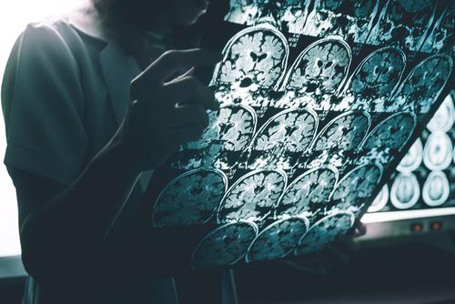 Why Do Women Get Alzheimer's More Than Men?