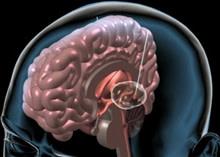 deep-brain-stimulation.jpg