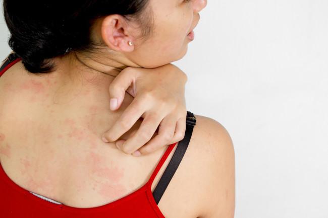 woman-scratching.jpg