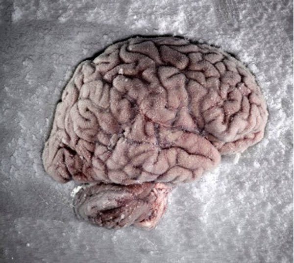 brain-on-ice.jpg