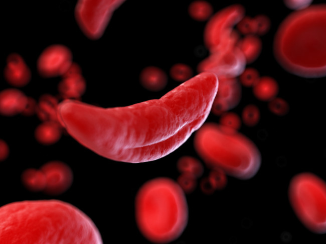 sickle cell - shutterstock