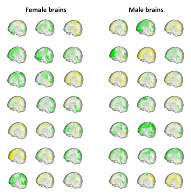 Male Female Brain Volumes Figure - Courtesy
