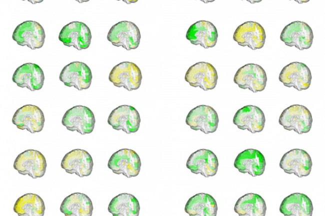 Male Female Brain Volumes Figure - Courtesy