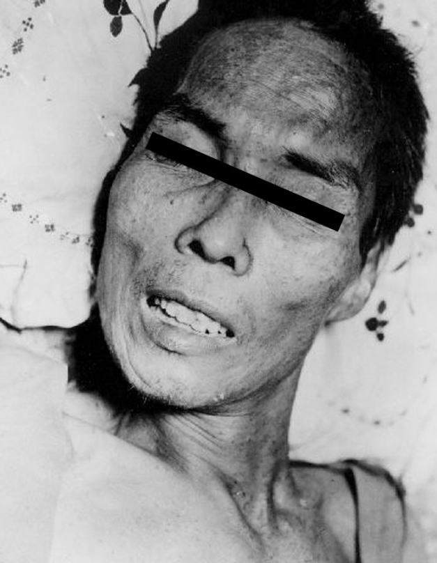 """The face of a Filipino man with tetanus showing the characteristic """"risus sardonicus,"""" the bared teeth and contracted facial muscles. He was presumably infected from a hand wound struck by shell fragments. Image: CDC/ AFIP/ C. Farmer."""