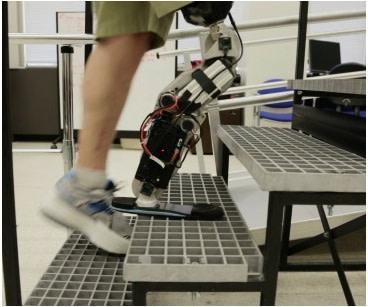 Bionic-limb.jpg