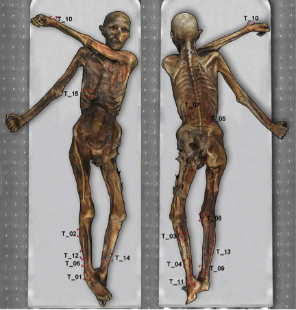human body diagram tattoo scientists have mapped all of   tzi the iceman s 61 tattoos  scientists have mapped all of   tzi the