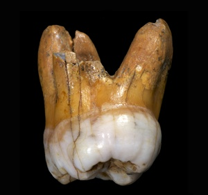 Densiovan Tooth - Max Planck