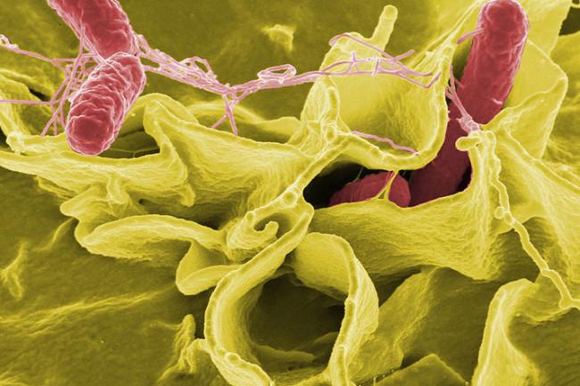 Salmonella bacteria - NIH