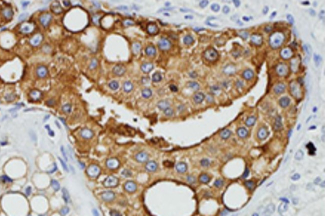 prostate-cancer-cells.jpg