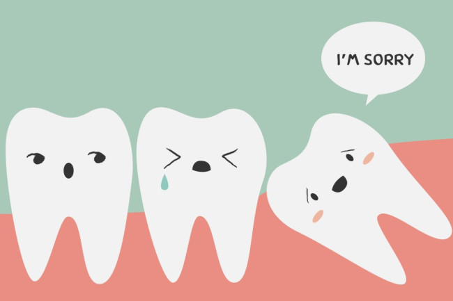 Wisdom Teeth - Shutterstock