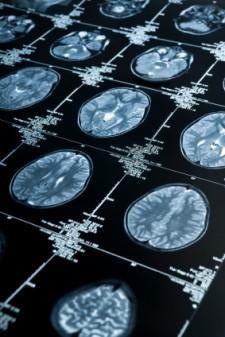 brain-scan-MRI-225x337.jpg