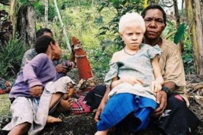 Albinistic_girl_papua_new_guinea-300x234.jpg