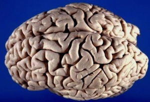 Brain_300.jpg
