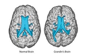 grandin-normal-brains