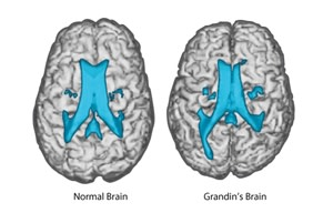grandin-normal-brains