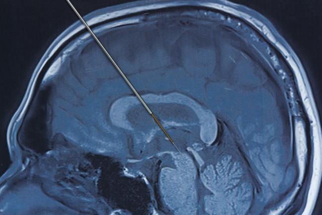 deep brain stimulation concept probe parkinsons disease - shutterstock