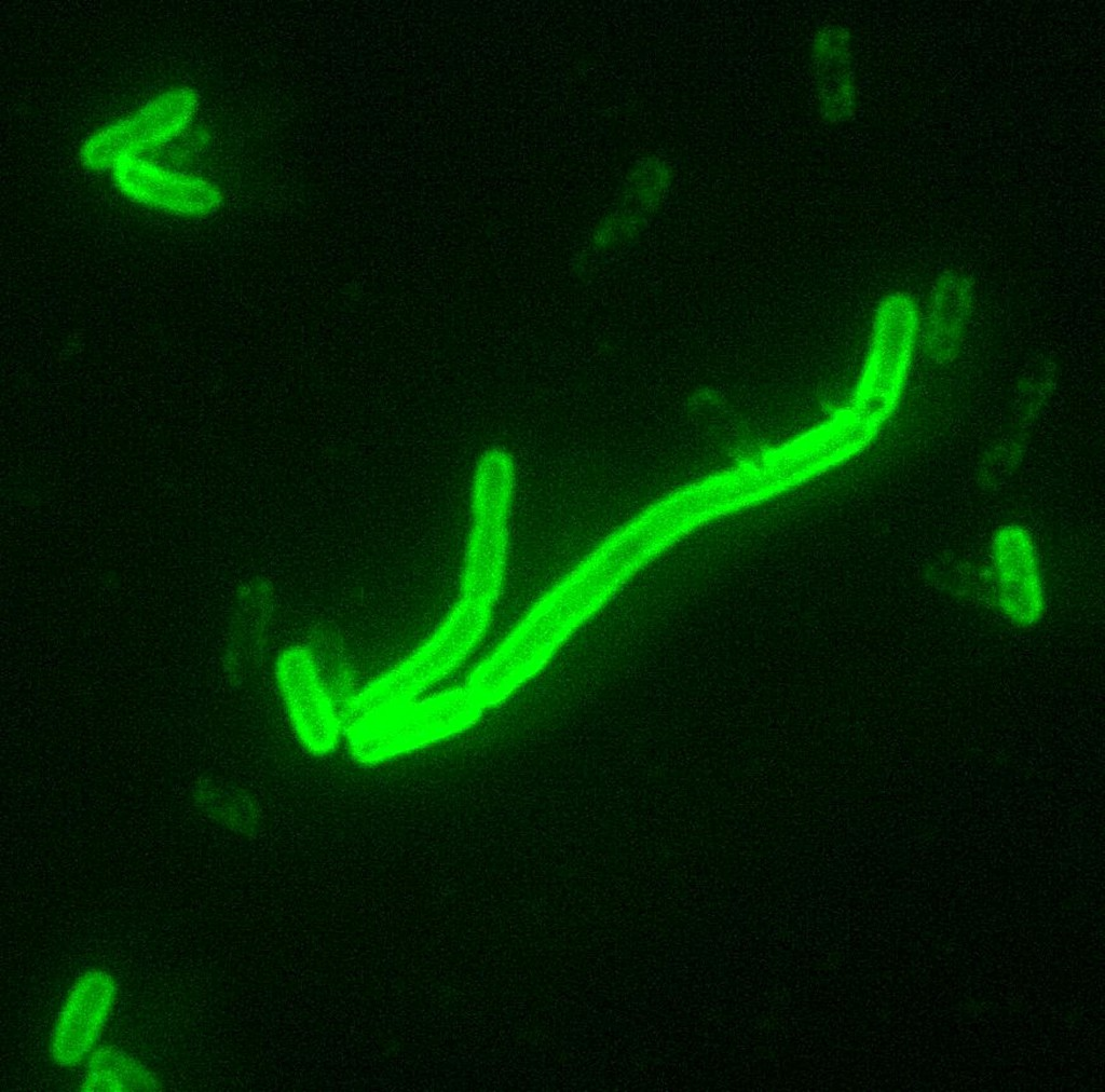 Yersinia_pestis_fluorescent-1024x1012.jpeg