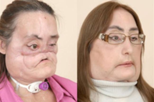 face-transplant.jpg