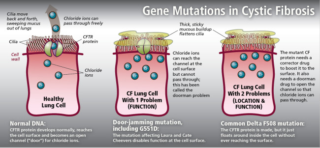 Gene Mutations in Cystic Fibrosis - Jay Smith