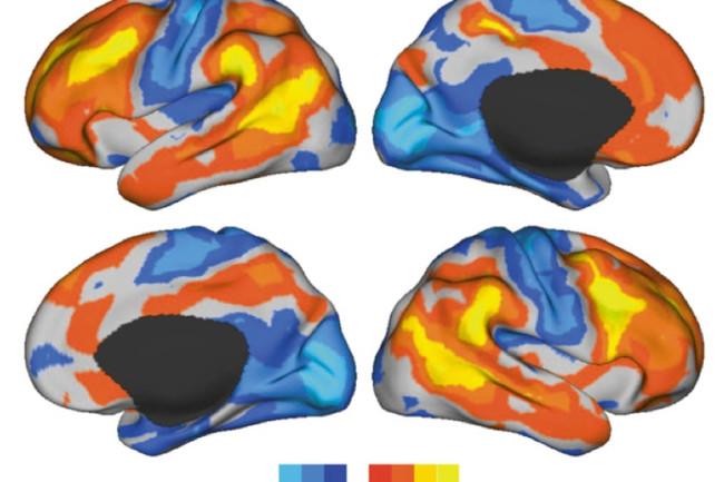 brain-variation.jpg