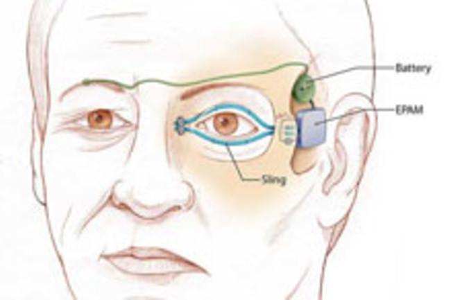 eyelid-cadaver.jpg